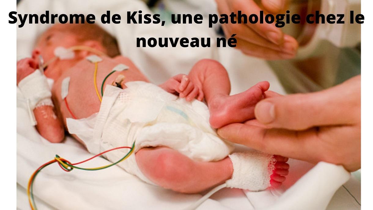 syndrome de kiss